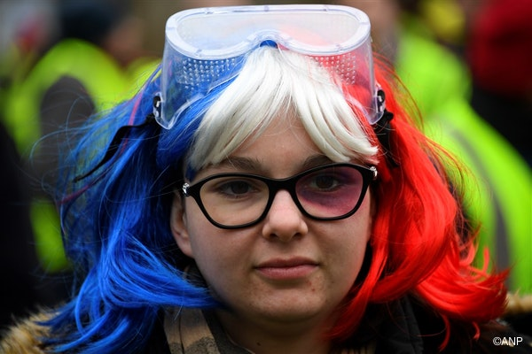 A Yellow Vest (Gilets jaunes) protester, sporting a made up black eye to denounce police violence, takes part in an anti-government demonstration called by the Yellow Vest movement in Saint-Brieuc, western France, on January 12, 2019.
