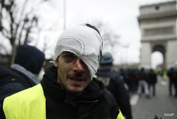 An injured protester from the 'Gilets Jaunes' (Yellow Vests) is seen on Place de l'Etoile, near the Arc de Triomphe, as he takes part in the 'Act IX' demonstration (the 9th consecutive national protest on a Saturday) in Paris, France, 12 January 2019.